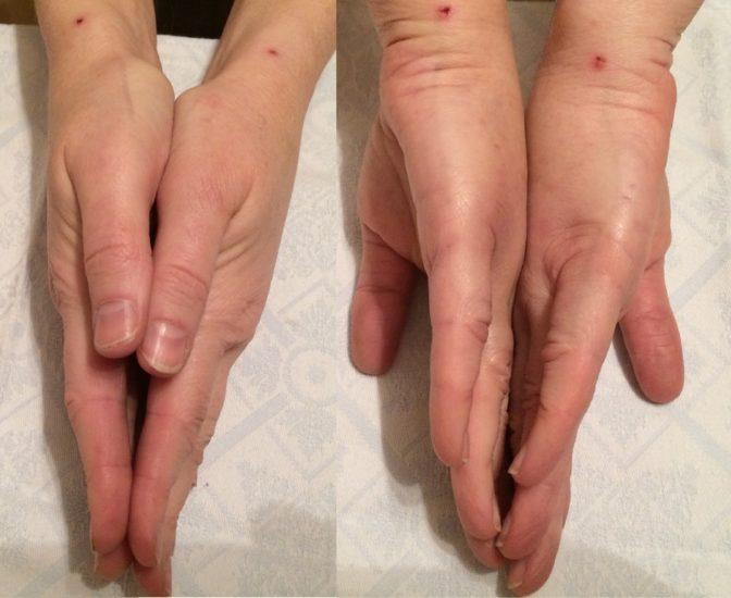 осложнения липофилинга рук