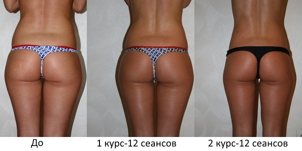 эффективность процедуры дерматония тела