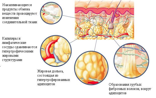 механизм развития целлюлита и варикоза