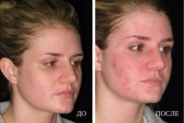 осложнения после чистки лица