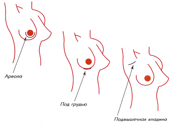 виды разрезов при маммопластики