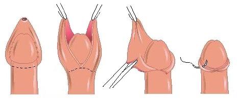 операции на половом члене