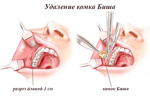 этапы операции по удалению комков биша