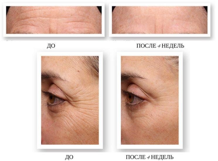 результаты применения крема с ретинолом