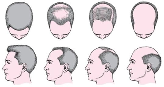 типы выпадения волос у мужчин