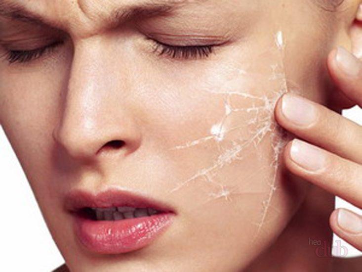 причины шелушения кожи лица