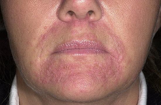 шелушение вокруг рта