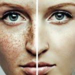 как убрать веснушки на лице