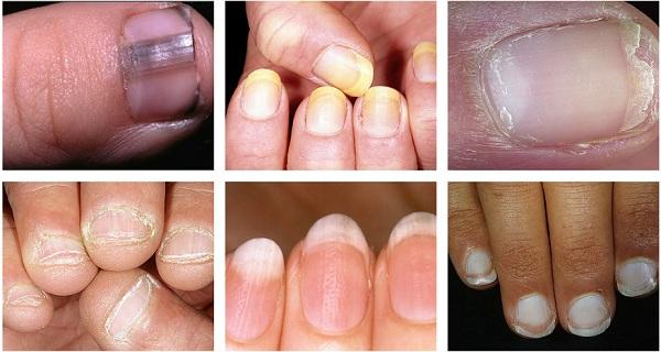 причины деформации ногтя