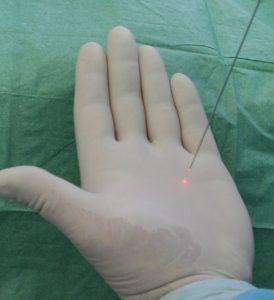 лечение гипергидроза лазарем