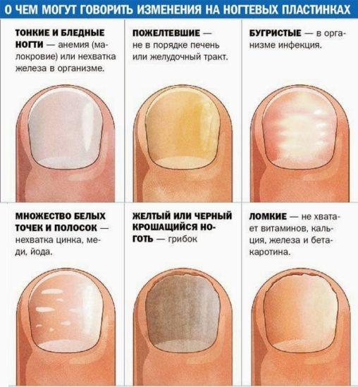 проблемы с ногтевой пластиной