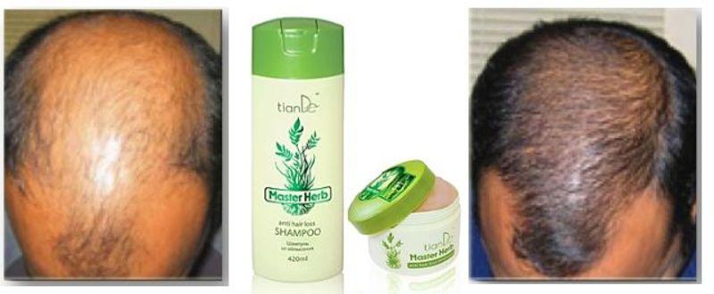 шампунь уход для мужчин от выпадения волос