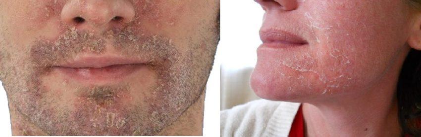 шелушится кожа лица