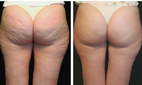 До и после процедуры гидромассажа