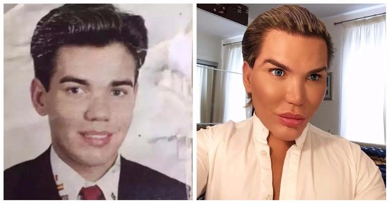 Кен до и после пластики