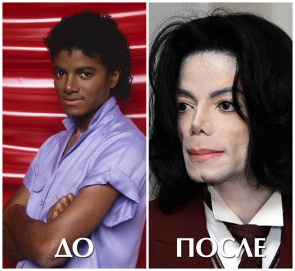 Майкл Джексон подбородок