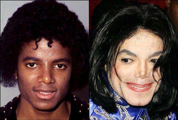 до и после пластики Майкл Джексон