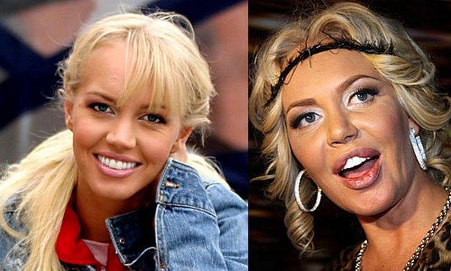 губы малиновской до и после