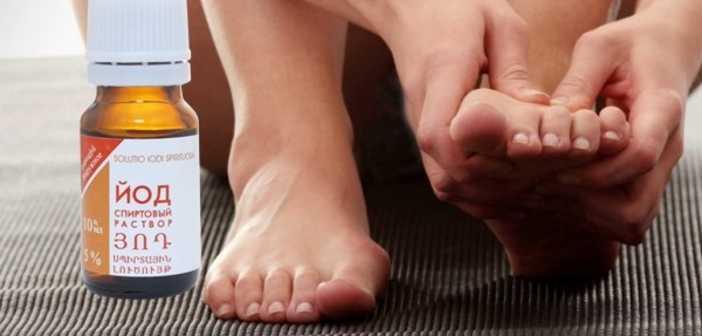 йод и грибок ногтей