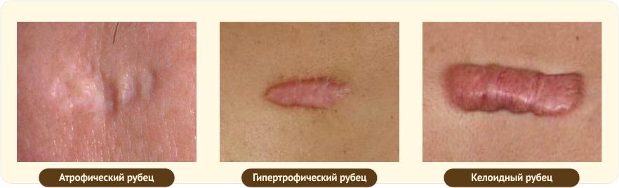 виды рубцов на коже