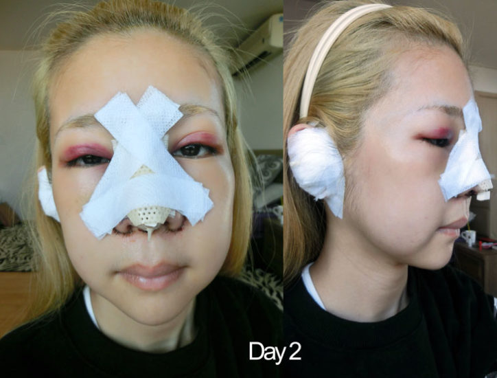 реабилитация после пластики лица