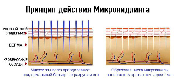 микронидлинг