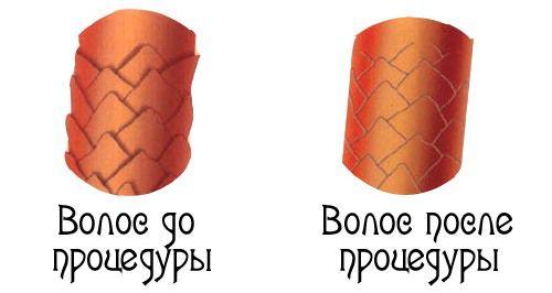 бэс до и после