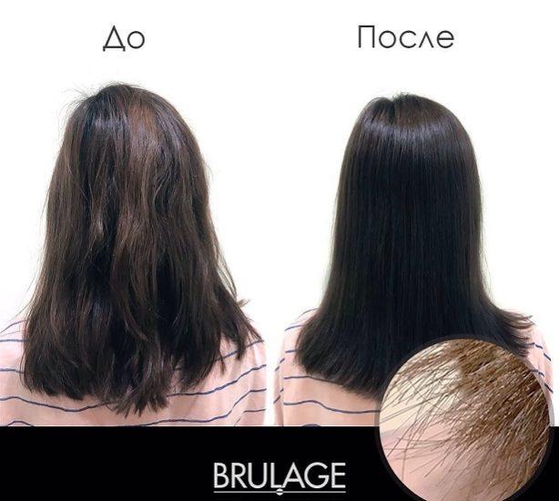 брюляж до и после