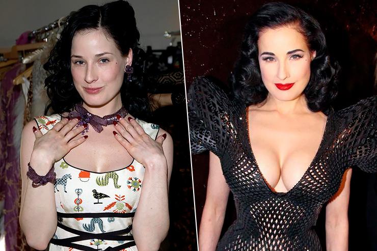 дита до и после пластики груди
