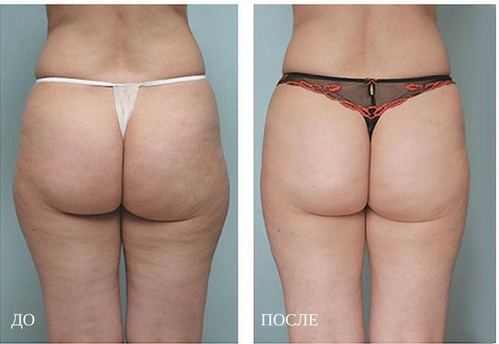 криолиполиз результат похудения