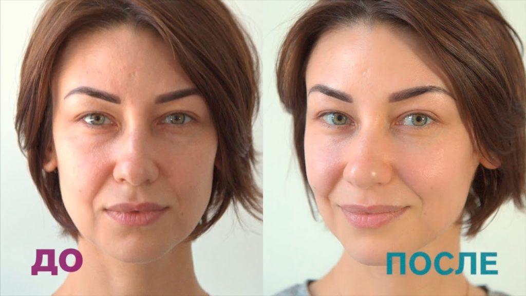 до и после микротоковой терапии