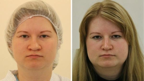 до и после уменьшения ноздрей