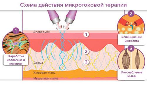 микротоки