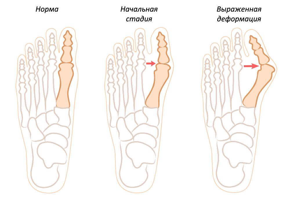 операция и косточка на ноге