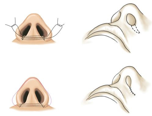 операция уменьшение ноздрей