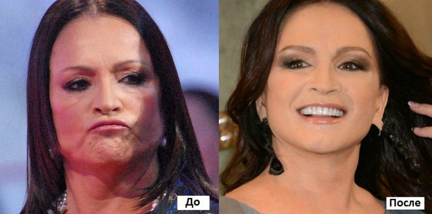 ротару до и после пластики