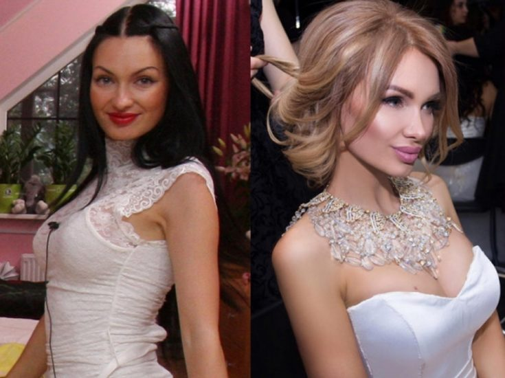 До и после пластики Евгения Феофилактова