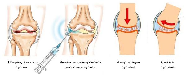 восстановление сустава