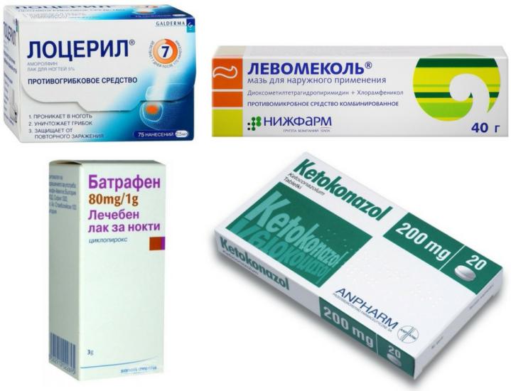 онихолизис