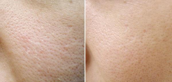 до и после применения мумие для лица