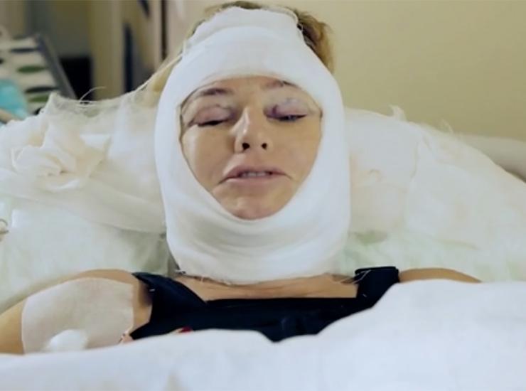операция даниловой