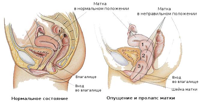 перинеопластика