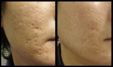 до и после лечения шрамов после оспы