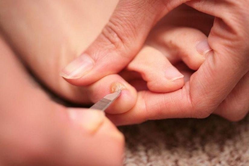 лечение онихолизиса
