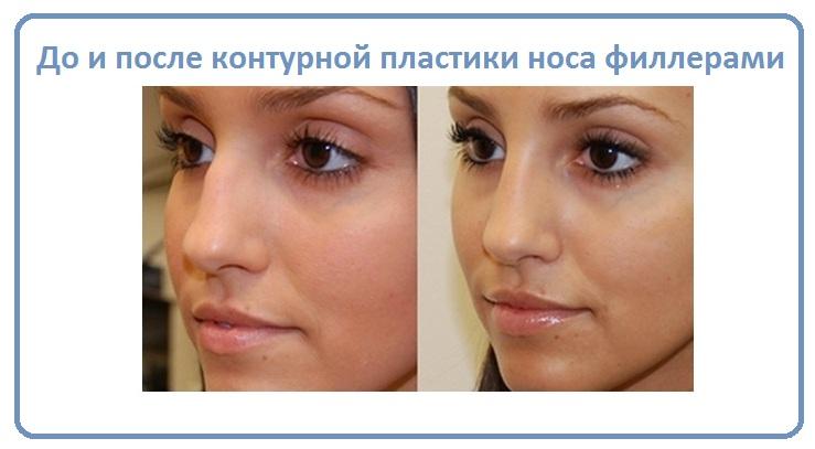 Контурная пластика носа филлерами