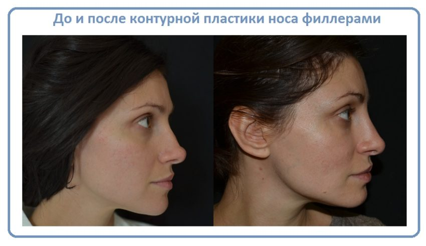 до и после контурной пластики носа