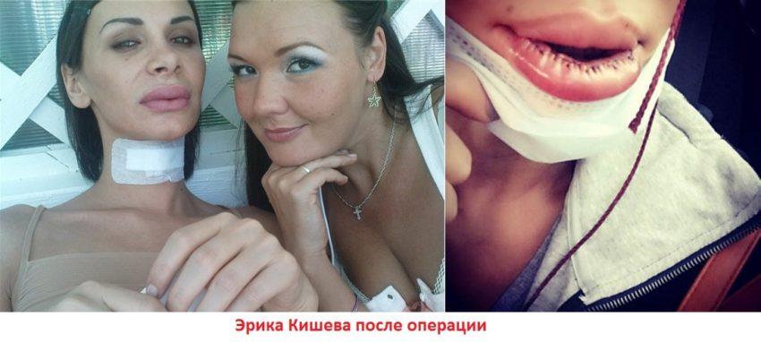эрика кишева операция на шее