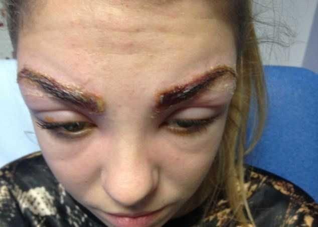 инфекция после татуажа бровей