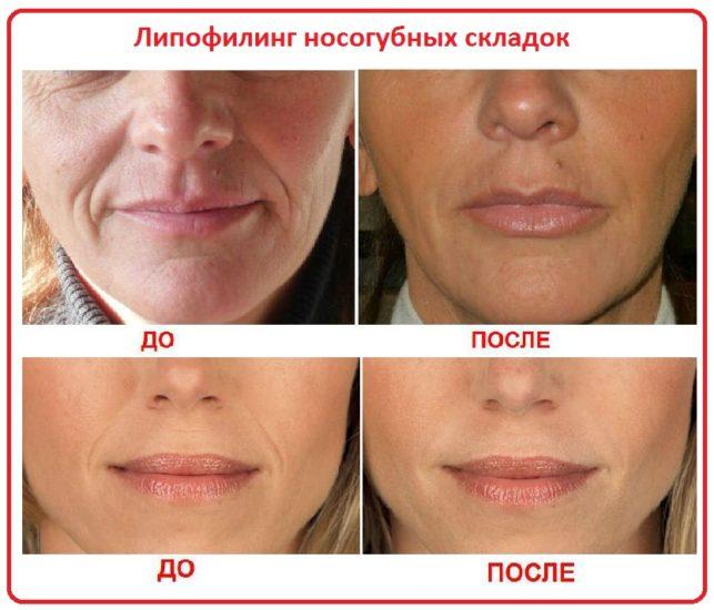 липофилинг до и после