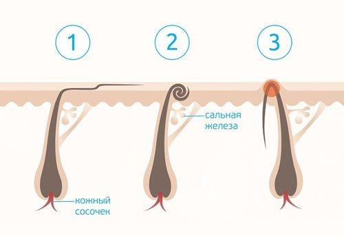 образование шишки из вросшего волоса